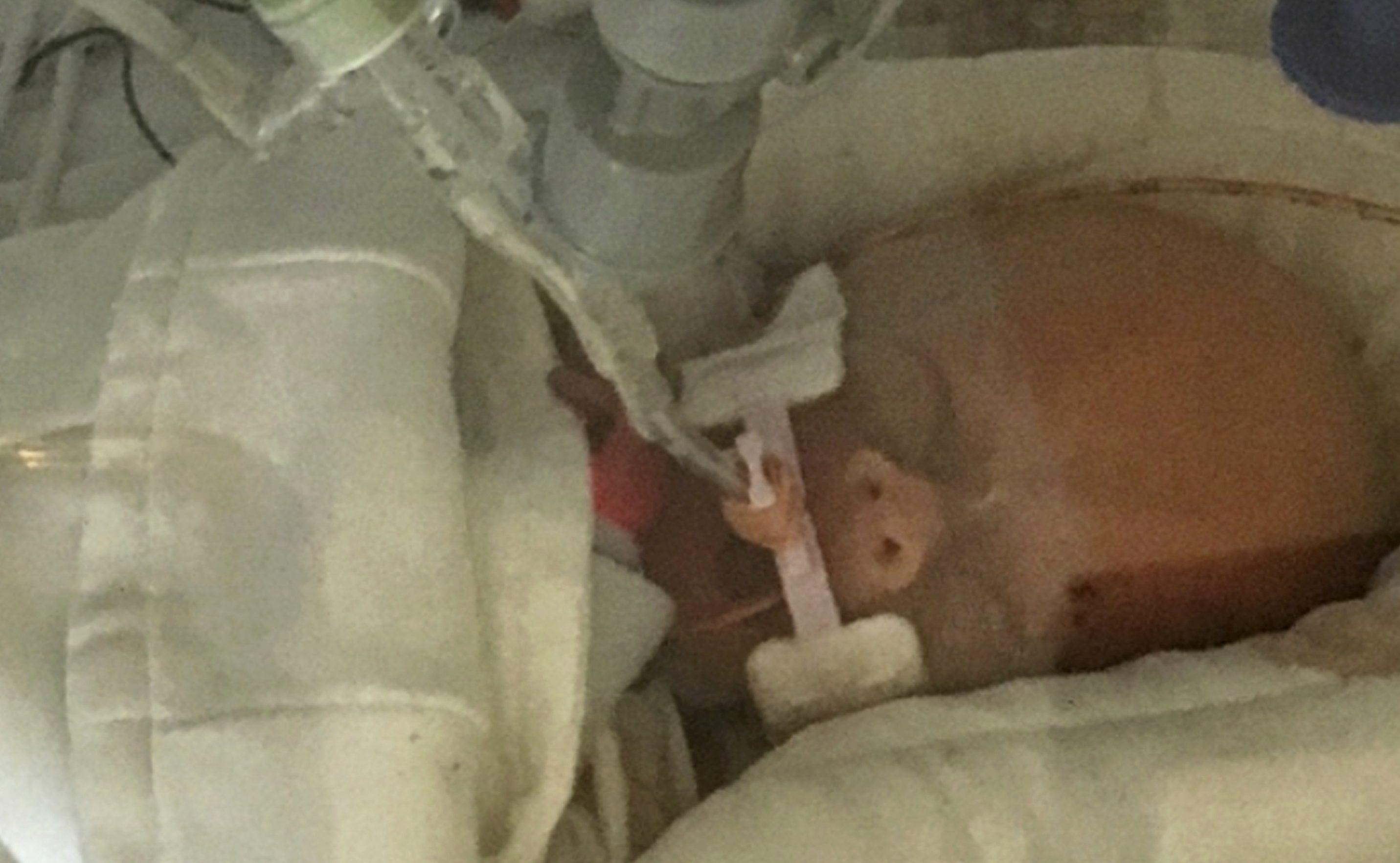 Schwangere wählt Tod, um Baby zu retten - Kind stirbt danach